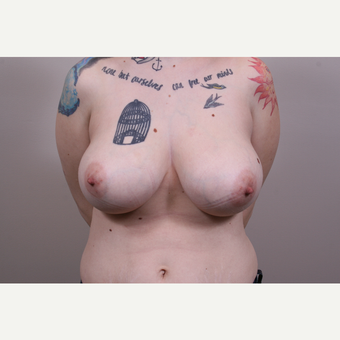 25-34 year old woman treated with Breast Reduction before 3769537