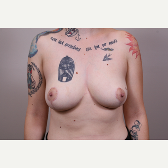25-34 year old woman treated with Breast Reduction after 3769537