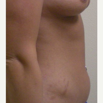 35-44 year old woman treated with Tummy Tuck before 3447502