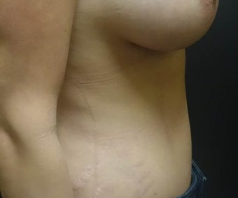35-44 year old woman treated with Tummy Tuck after 3447502