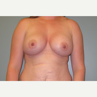 25-34 year old woman treated with Breast Augmentation after 3253894