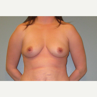 25-34 year old woman treated with Breast Augmentation before 3253894