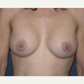 35-44 year old woman treated with Breast Augmentation after 3454858