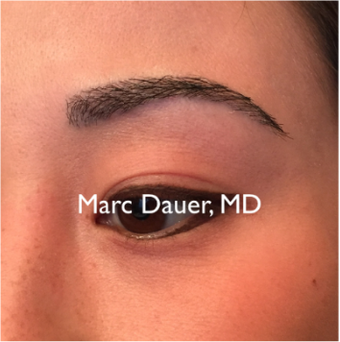 25-34 year old woman treated with Eyebrow Transplant 3377665