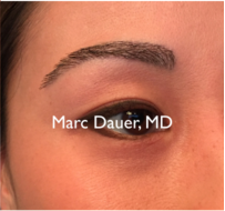 25-34 year old woman treated with Eyebrow Transplant after 3377665
