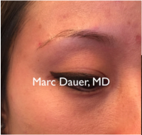 25-34 year old woman treated with Eyebrow Transplant before 3377665