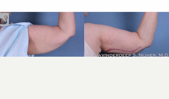 65-74 year old woman treated with Arm Lift after 3770018