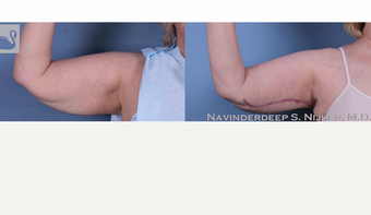 65-74 year old woman treated with Arm Lift before 3770018