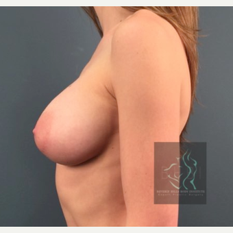 25-34 year old woman treated with Breast Implant Revision before 3110457