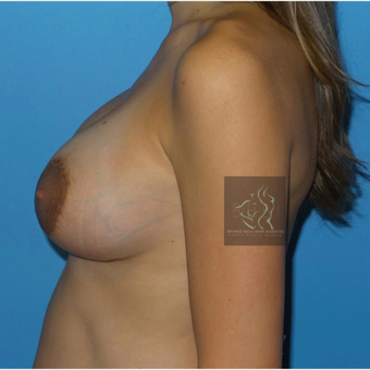 25-34 year old woman treated with Breast Implant Revision after 3110457