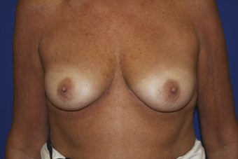 56 year old patient diagnosed with breast cancer.