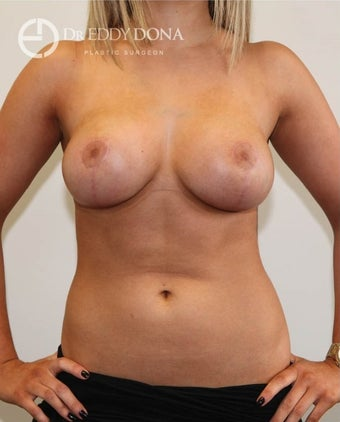 18-24 year old woman treated with Breast Lift No Implants after 1616968