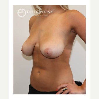 18-24 year old woman treated with Breast Lift No Implants 1616968