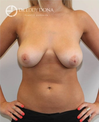 18-24 year old woman treated with Breast Lift No Implants before 1616968