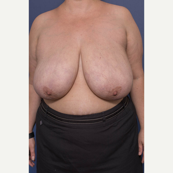 25-34 year old woman treated with Breast Reduction before 3734568