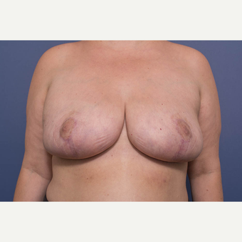 25-34 year old woman treated with Breast Reduction after 3734568