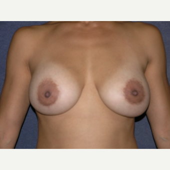 35-44 year old woman treated with Breast Augmentation after 3536577