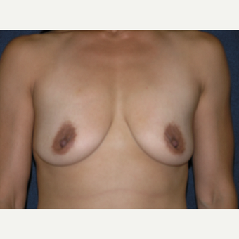 35-44 year old woman treated with Breast Augmentation before 3536577