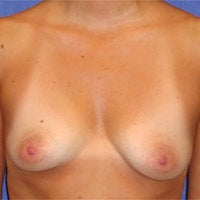 Breast Augmentation  before 694620