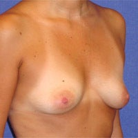 Breast Augmentation  694620
