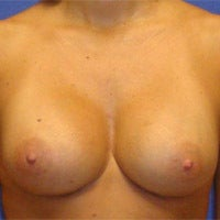Breast Augmentation  after 694620