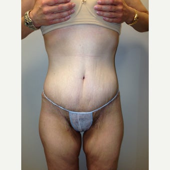 35-44 year old woman treated with Tummy Tuck after 3411477