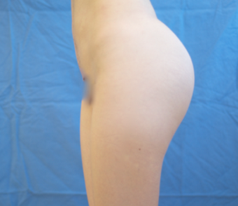 18-24 year old woman treated with Butt Augmentation after 1662814