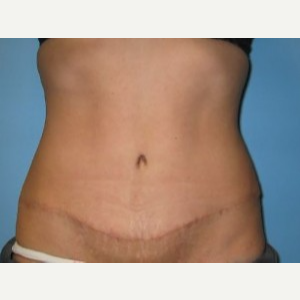 Tummy Tuck after 3665575