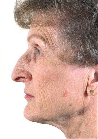 Rhinoplasty on Mature Adult before 1023354