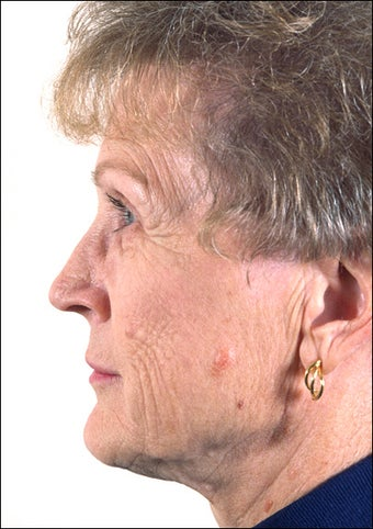 Rhinoplasty on Mature Adult after 1023354