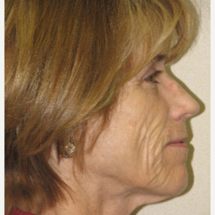 45-54 year old woman treated with Injectable Fillers before 3137164