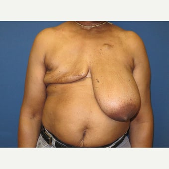 55-64 year old woman treated with Breast Reconstruction before 1818384