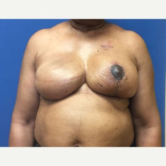 55-64 year old woman treated with Breast Reconstruction after 1818384