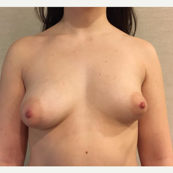 25-34 year old woman treated with Breast Fat Transfer before 3738015
