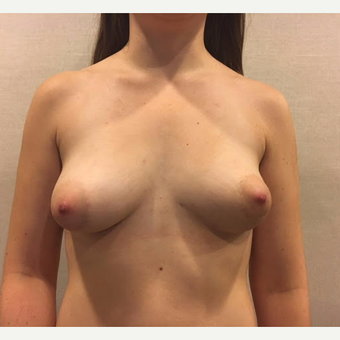 25-34 year old woman treated with Breast Fat Transfer after 3738015
