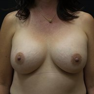 Breast Augmentation after 3012422
