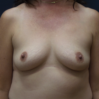 Breast Augmentation before 3012422