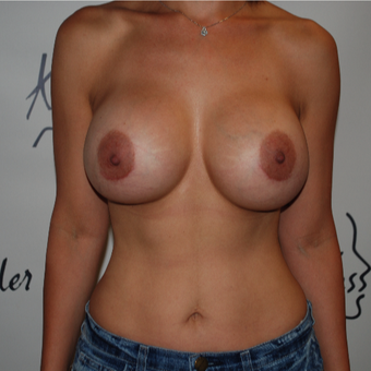 25-34 year old woman treated with Breast Implant Revision after 3577493
