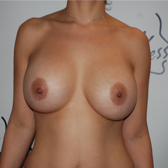 25-34 year old woman treated with Breast Implant Revision before 3577493