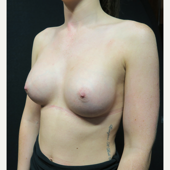 18-24 year old woman treated with Breast Augmentation after 3568593