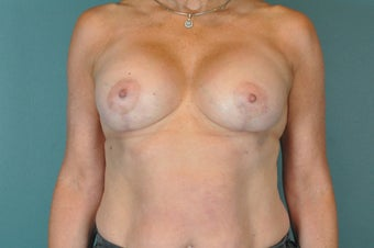 Breast Lift with Implants after 1326226