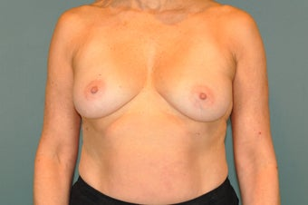 Breast Lift with Implants before 1326226