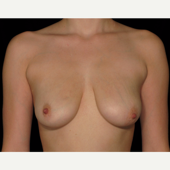 25-34 year old woman treated with Breast Lift with Implants before 3026758