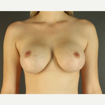 25-34 year old woman treated with Breast Lift with Implants after 3026758