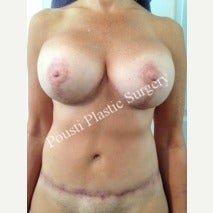45-54 year old woman treated with Breast Implants after 1586672