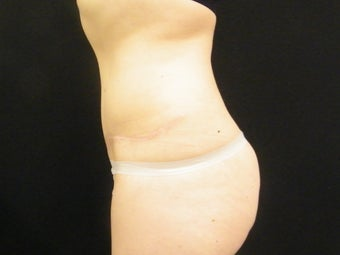Abdominoplasty 1413731