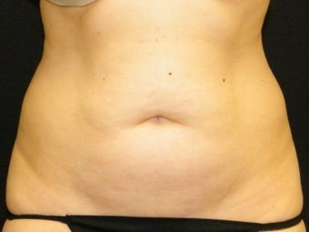 Abdominoplasty before 1413731