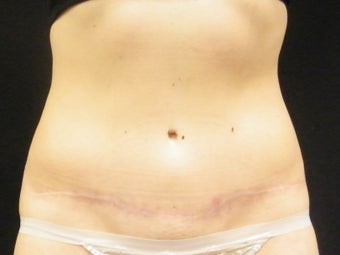 Abdominoplasty after 1413731