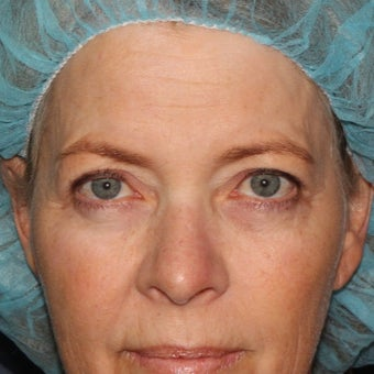 59 year old woman treated with Laser Resurfacing using multiple lasers in one treatment session before 1644193