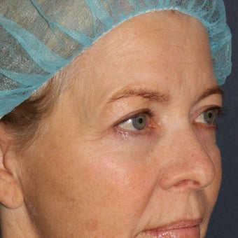 59 year old woman treated with Laser Resurfacing using multiple lasers in one treatment session 1644193